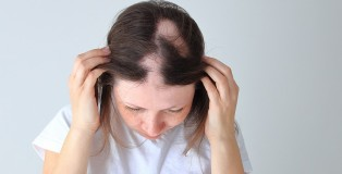 Real alopecia areata in a young girl. A bald head in a person. - www.salonbusiness.co.uk