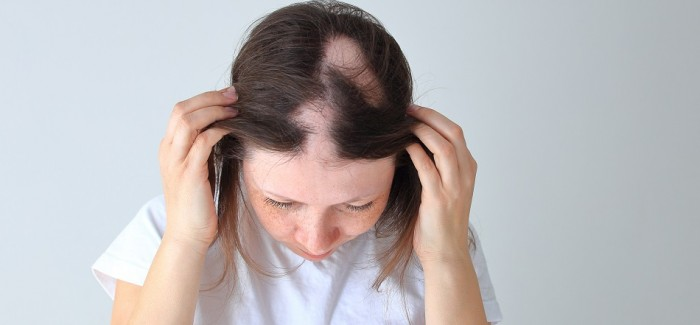 5 SIGNS TO LOOK OUT FOR WHEN IT COMES TO HAIR LOSS